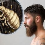 Preocupación por piojo que ataca barbas de lumbersexuales