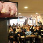Prohiben comerciales de uñas con hongos a la hora del almuerzo